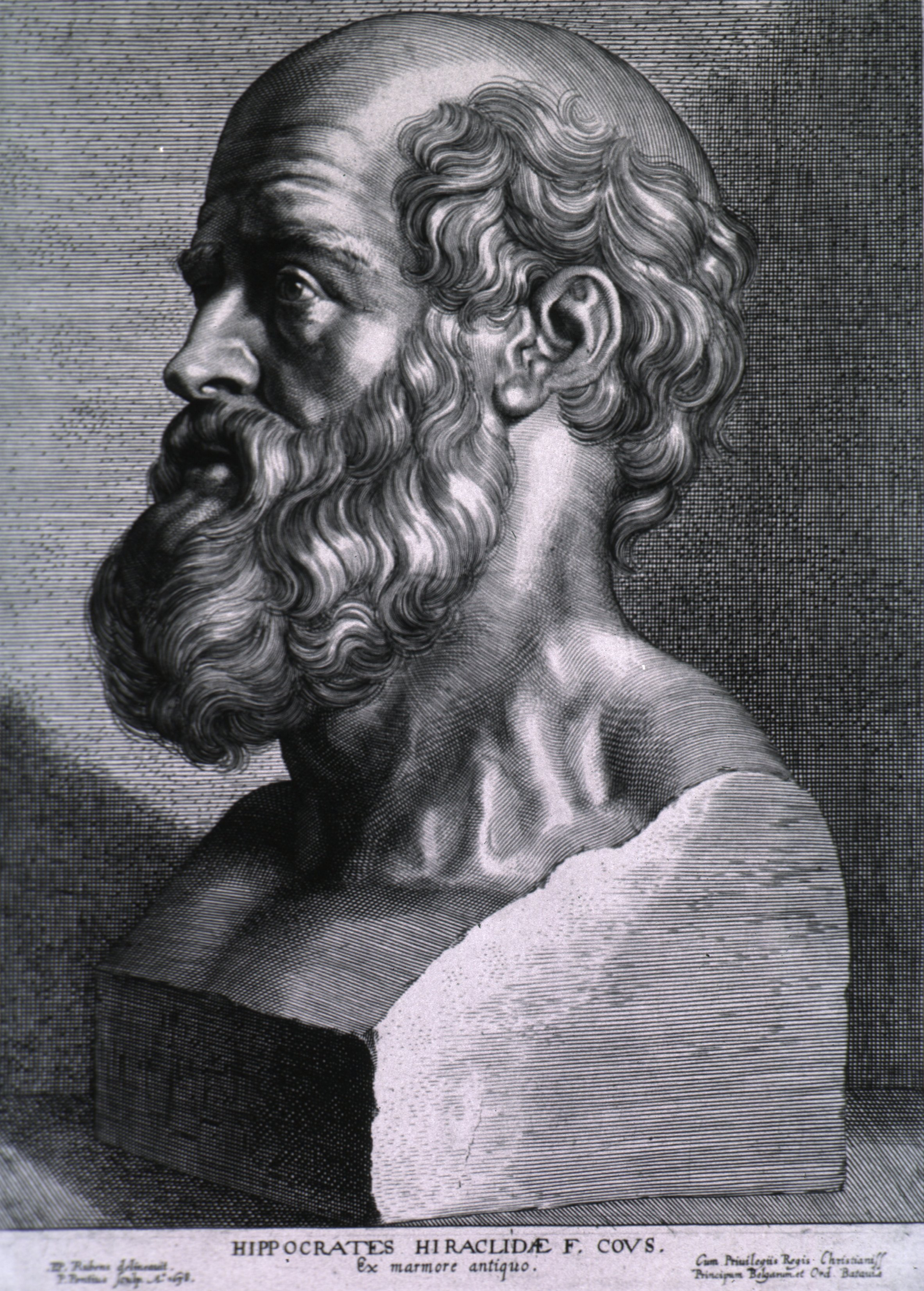 Hippocrates, father of modern medicine, advocated for the inclusion of people with epilepsy.